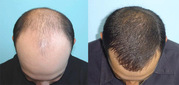 Hair transplant centre near himachal pardesh | at affordable cost
